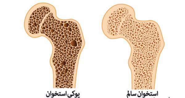 پوکی استخوان بیماری خاموش