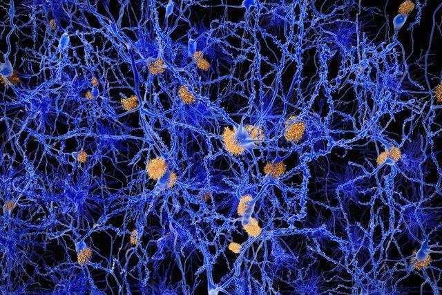کشف نشانه اولیه آلزایمر در مغز